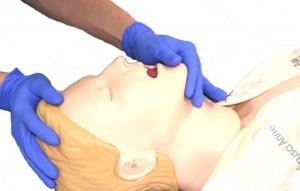 Reklination des Kopfes